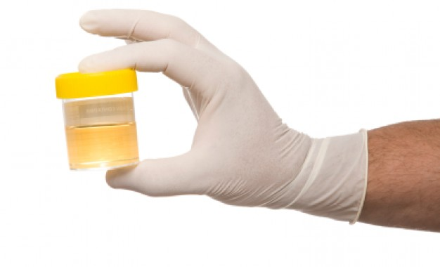 Urine may leak vital information about your body