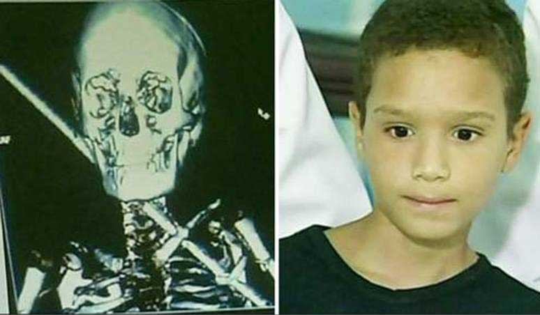 Miracle survivor: Brazilian boy survives iron bar impaling