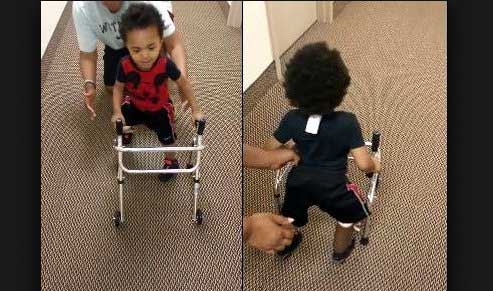 Amazing one year old amputee learns to walk and melts our hearts